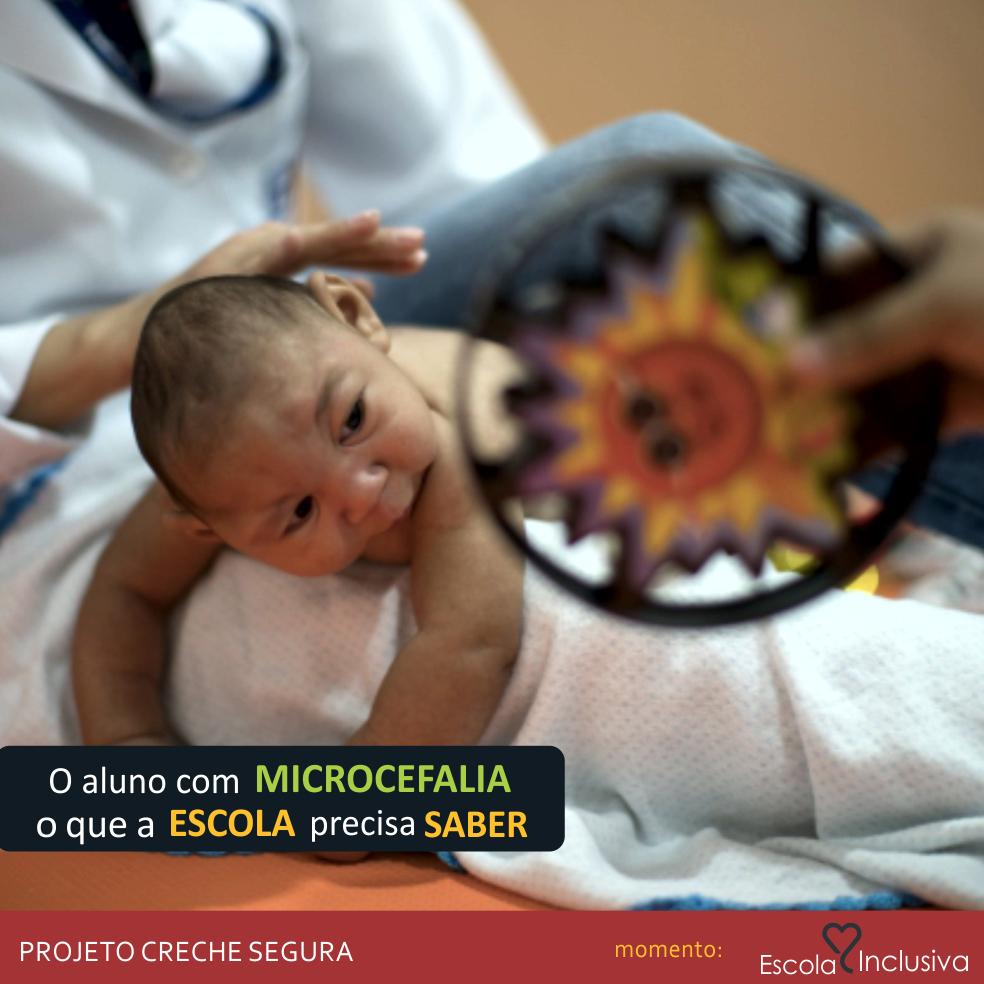 Escola Inclusiva O Aluno Com Microcefalia