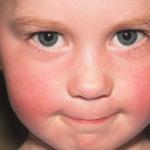 Escarlatina na criança, o que a escola precisa saber?