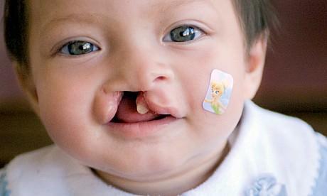 A criança com fissura labial e fenda palatina na escola